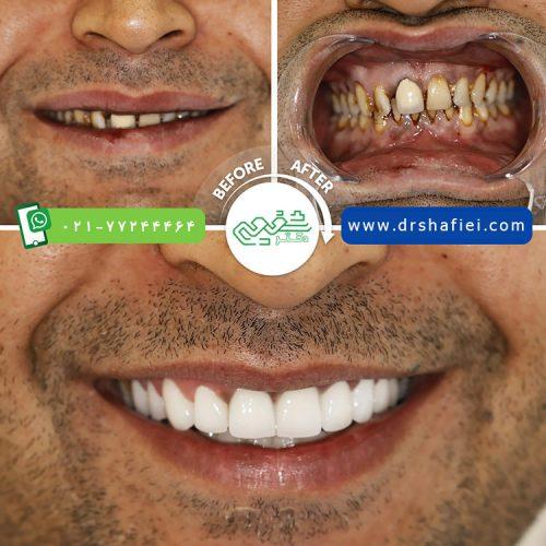 قبل و بعد لمینت دندان