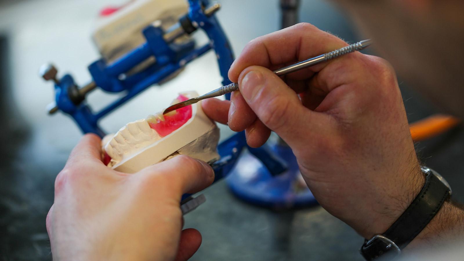 بریج و دندان مصنوعی با پشتیبانی ایمپلنت