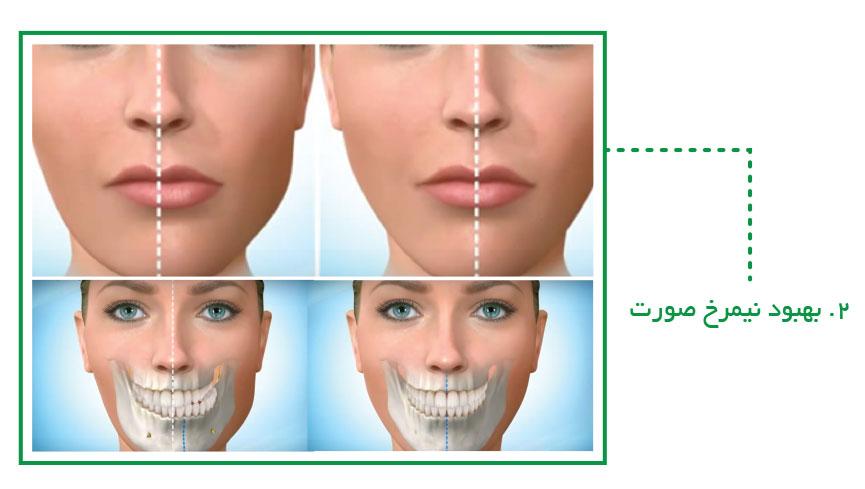 بهبود نیمرخ صورت