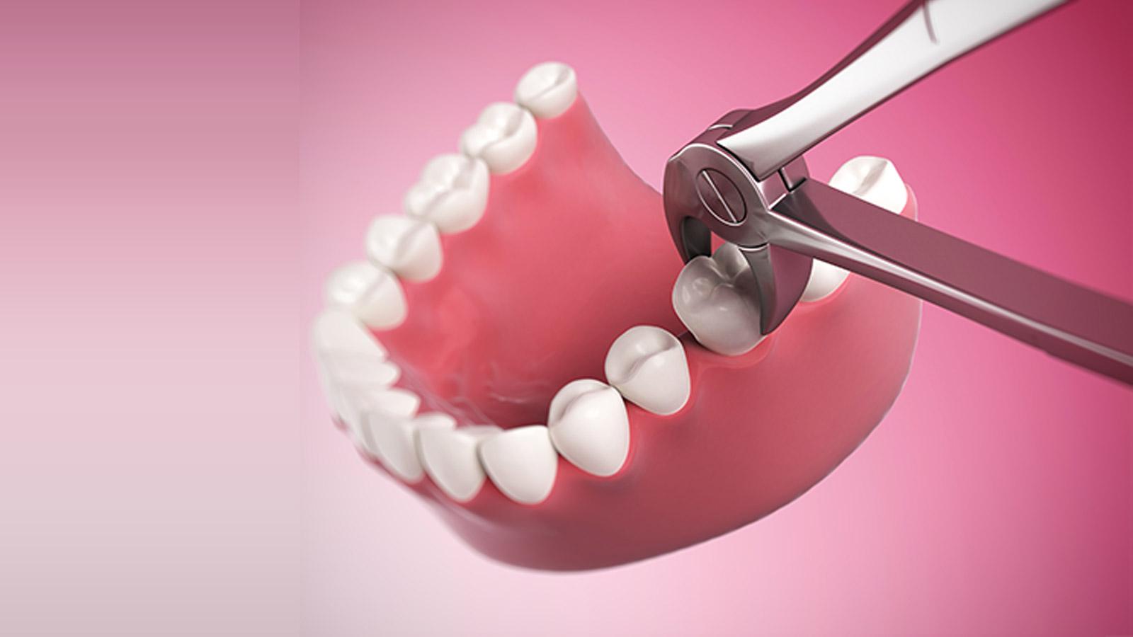 کشیدن دندان، بخشی از درمان ارتودنسی